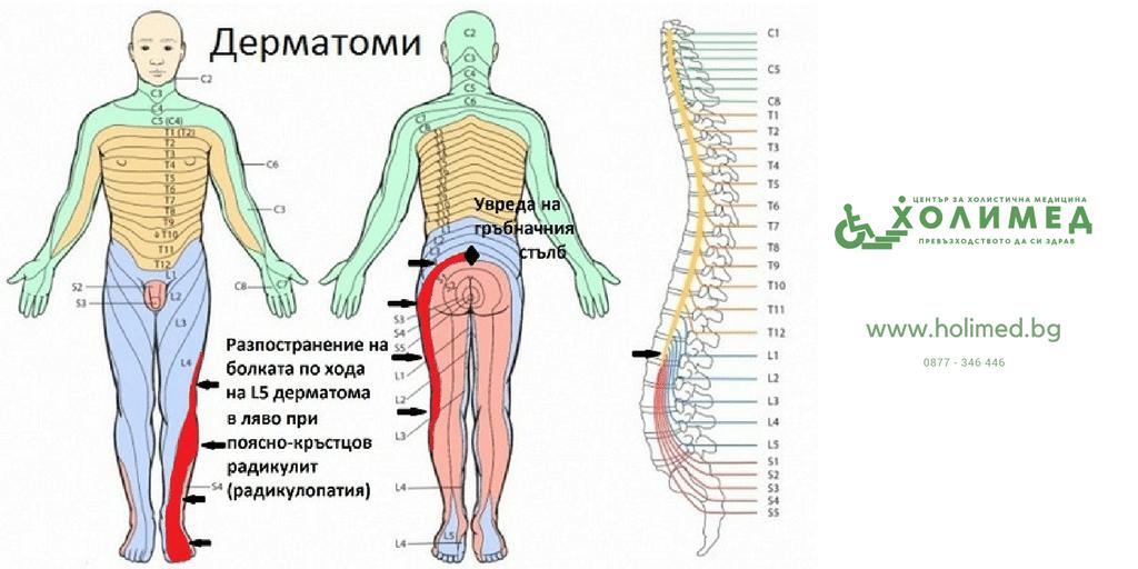 Симптоми на шиен радикулит