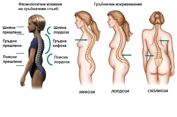 Изкривяване на гръбначният стълб лечение