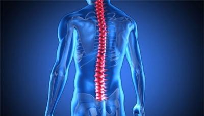 лечение на изкривен гръбначен стълб