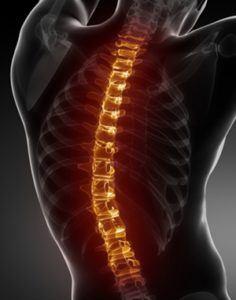 лечение на гръбначни изкривявания