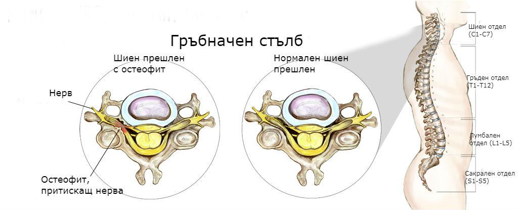 остеофит и дискова херния