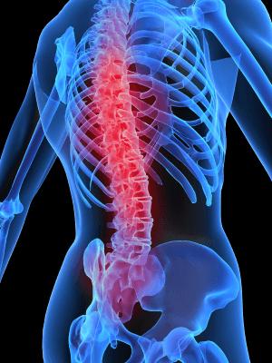 шипове на гръбначния стълб симптоми