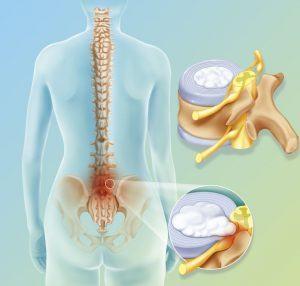 дискова херния лечение без операция