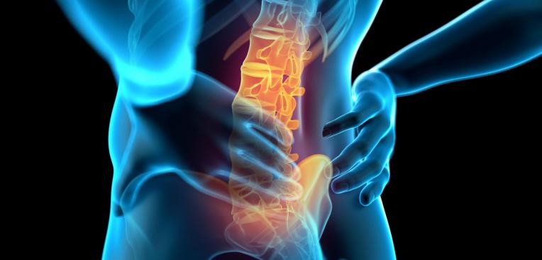 остеохондроза лечение