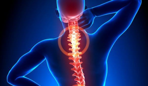 остеофитоза