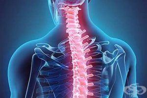Шипове и остеохондроза