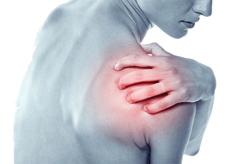 плексит на рамото симптоми