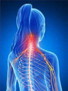 Радикулопатия – причини, симптоми и лечение